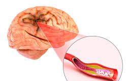 Quali cause possono causare un ictus cerebrale?